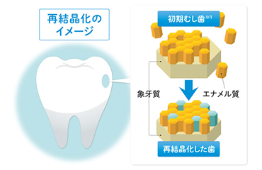 初期虫歯を再結晶化